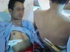Đưa cô gái gặp nạn vào viện, thanh niên bị người quen của nạn nhân đâm thấu phổi