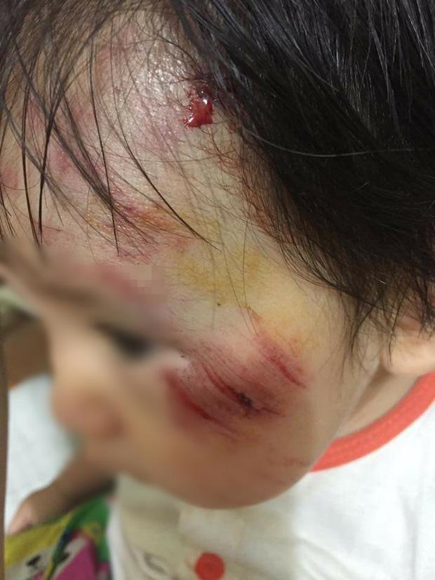 Hà Nội: Truy tìm nam thanh niên phóng mô tô tông bé gái 11 tháng trầy xước mặt rồi bỏ chạy - Ảnh 2.